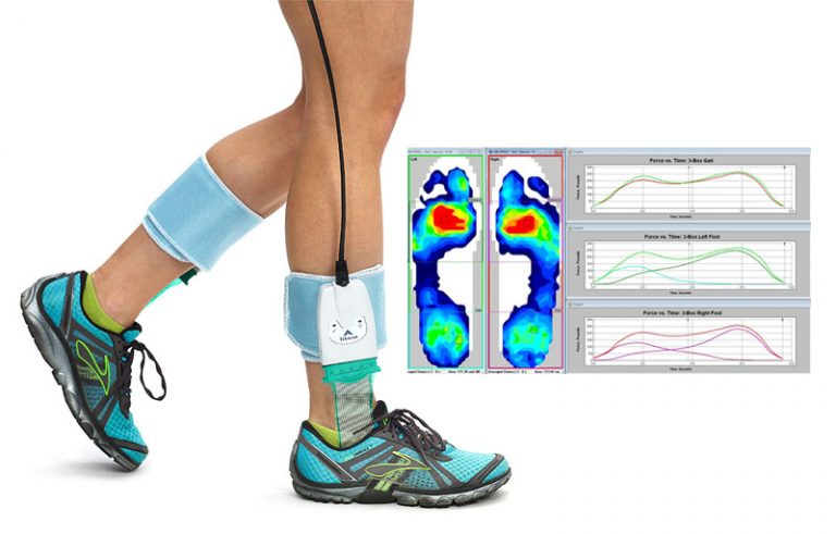 fisioterapia carci tekscan